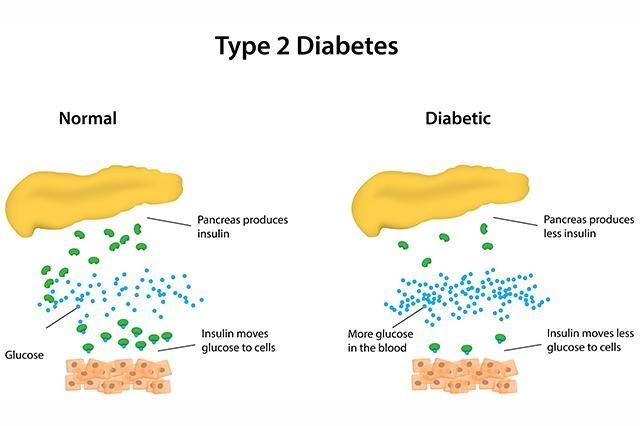 type 2 Diabetes etiology