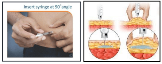 Insulin injecting Technique