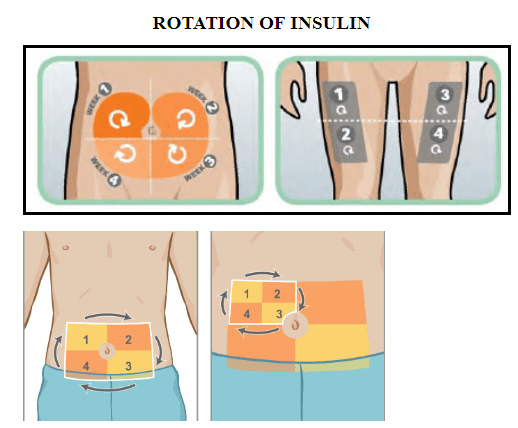 Rotation of injecting sites