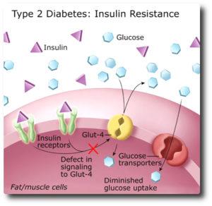 Type 2 Diabetes : how it occurs?